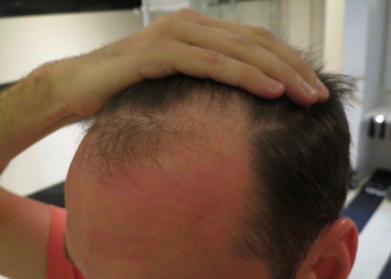 Haartransplantation Erfahrung mit Elithairtransplant