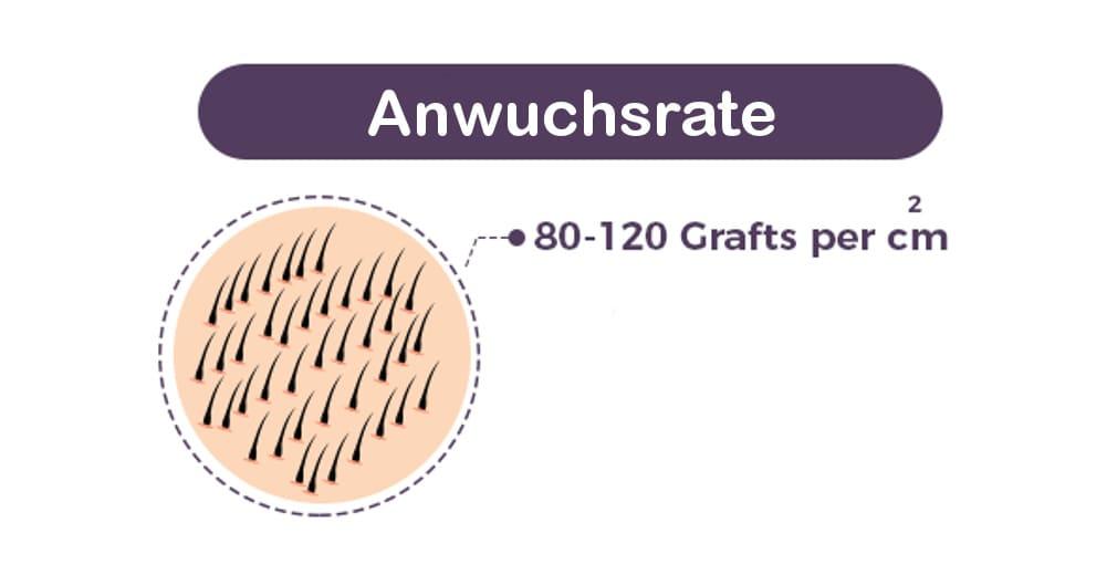Haartransplantation Schlechte Anwuchsrate