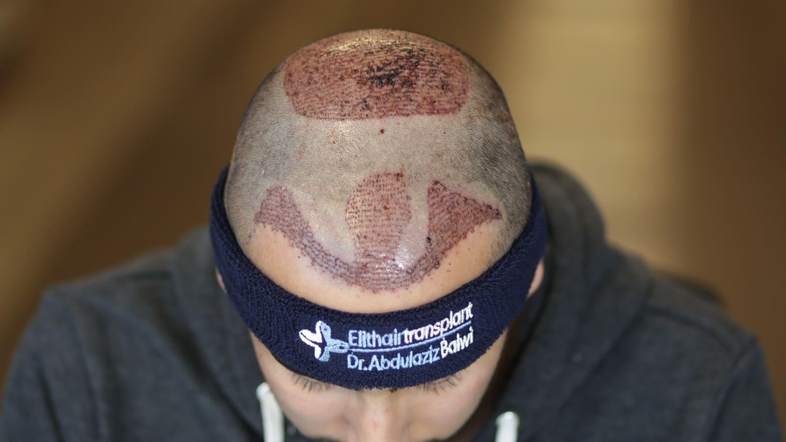 Haartransplantation Tonsur
