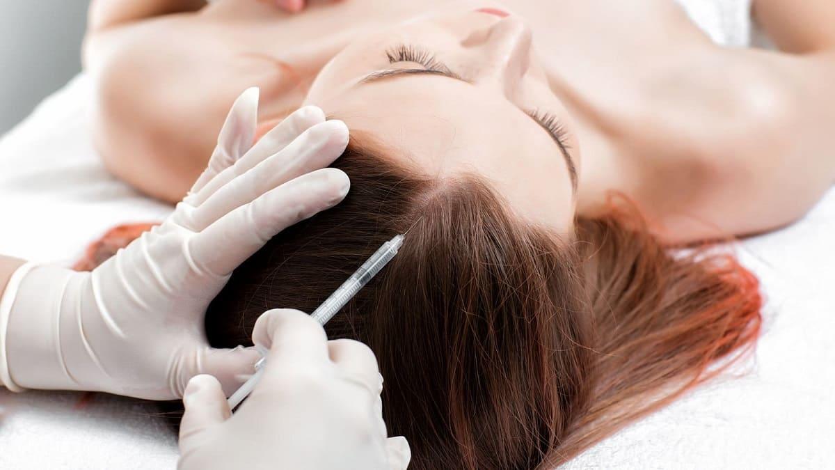 Mesotherapie gegen Haarausfall