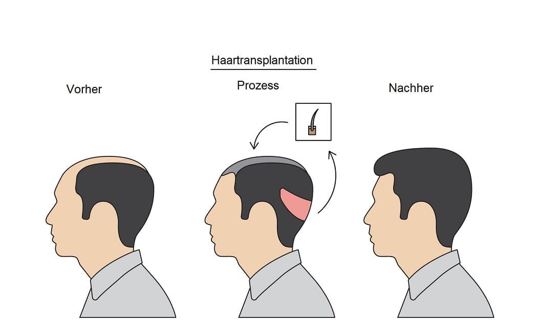 Vor- und Nachteile der Haartransplantation Methoden