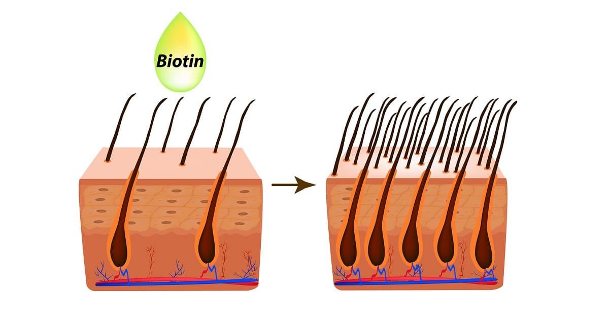 Biotin gegen Haarausfall – Wie gut wirkt das Vitamin wirklich