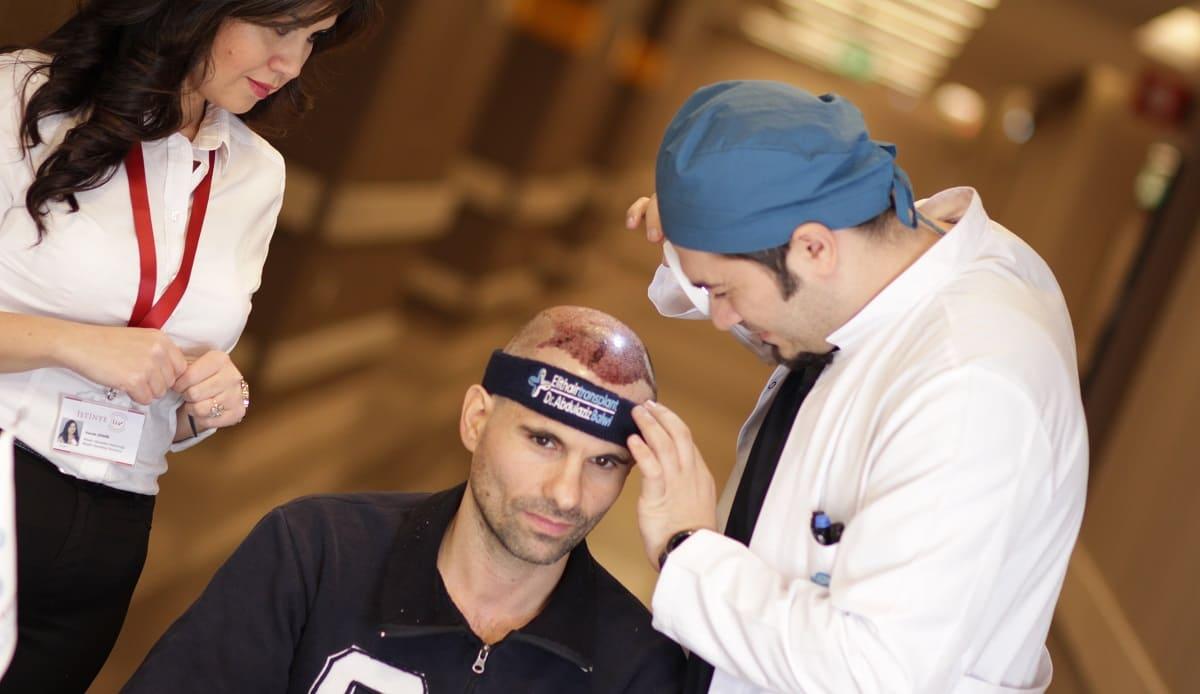 Haartransplantation Voraussetzungen für ein erfolgreiches Ergebnis