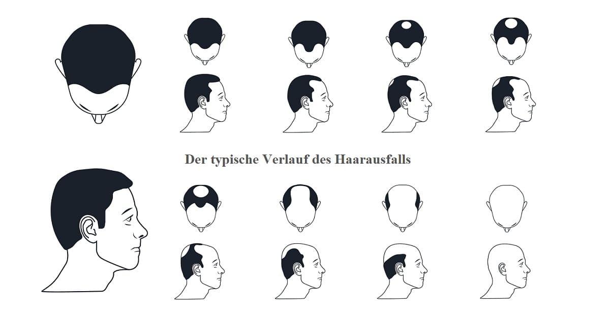 Norwood-Hamilton-Skala der typische Verlauf erblich bedingten Haarausfalls