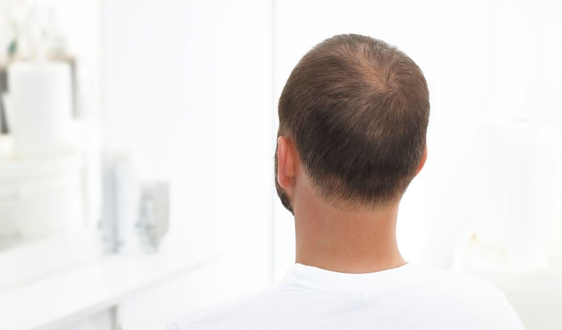5 verschiedene Gründe für dünnes Haar beim Mann