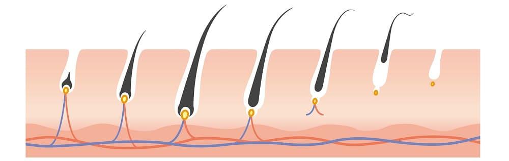 Haartransplantation geeignet, wenn Haare nicht wachsen