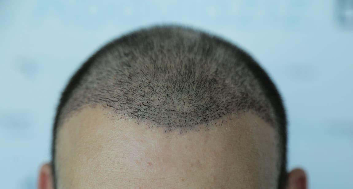 Haartransplantation haare fallen wieder aus - Ist das normal