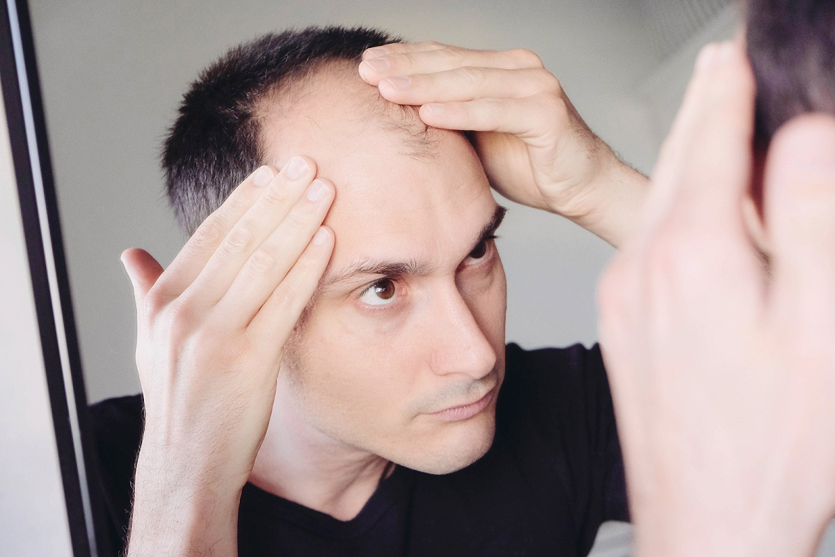 Mann mit starkem Haarausfall betrachtet sich im Spiegel.