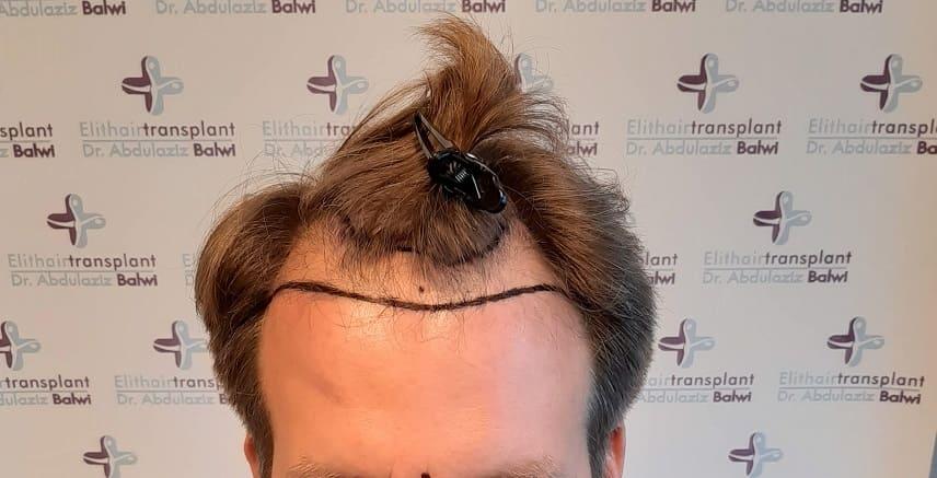 Alopezie Leitlinie Haarline gezeichnet Elithairtransplant