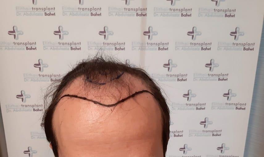 Frontaler Haarausfall