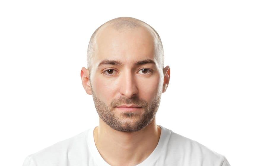 Glatze rasieren - Mann mit Glaze und kurzer Bart