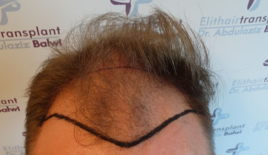 Haarausfall durch Essstörung