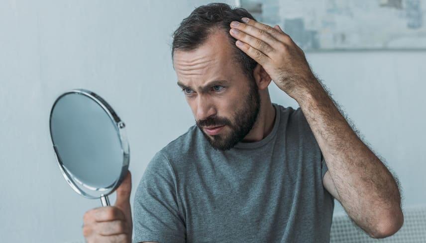 Haarausfall rückgängig Junge mann vor dem Spigel schaut sein Geheimratsecken