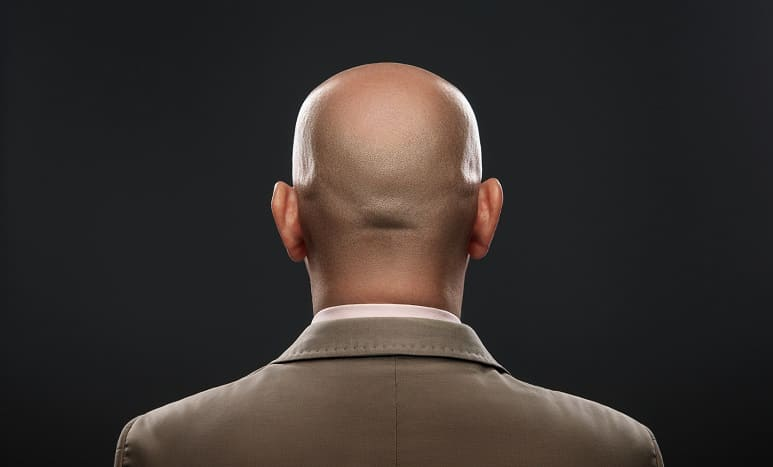 Mann mit glatze attraktiver Studie: Männer