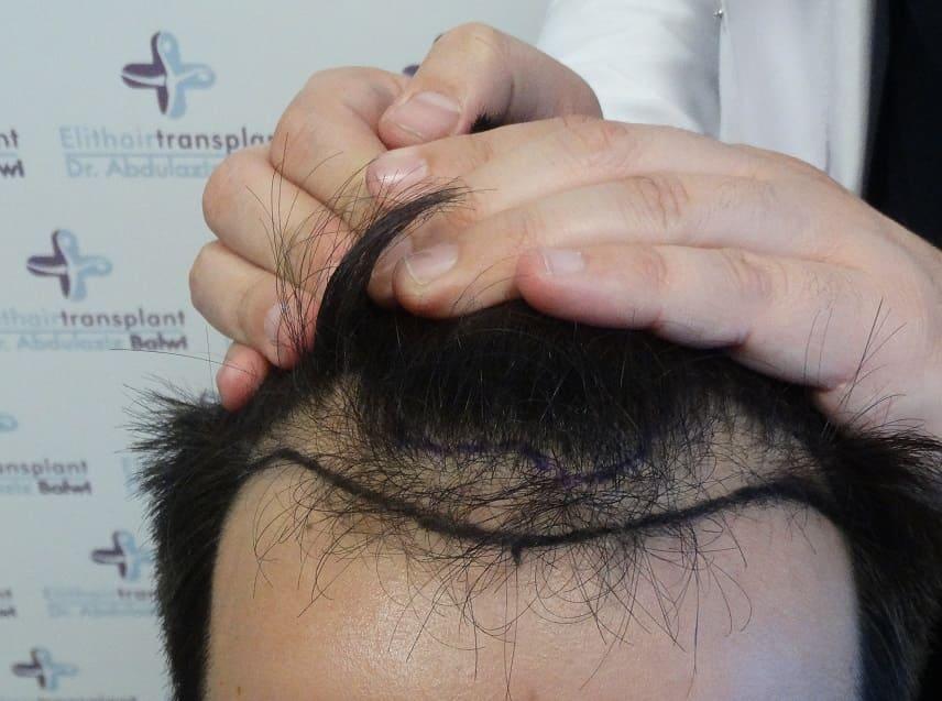 Arten von Haarersatz - gezeichnete natürliche Haarlinie vor Haartransplantation