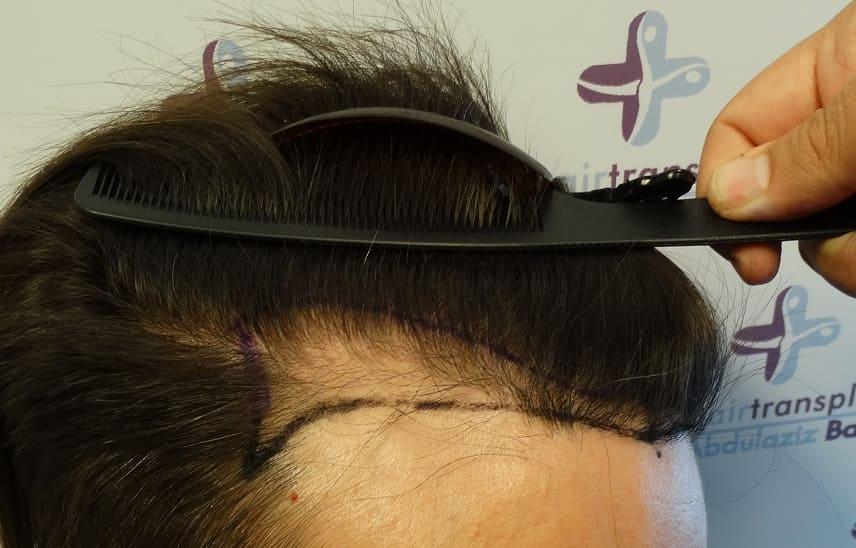 Haarausfall durch einen Sonnenbrand - Vor der Behandlung bei Haarausfall - Elithairtransplant