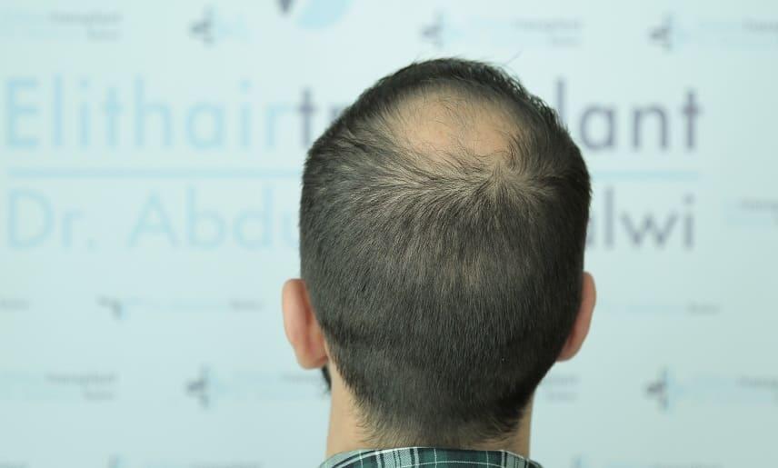 Haarausfall bei Colitis Ulcerosa - Behandlung bei Haarausfall Elithairtransplant