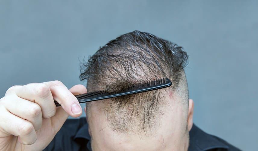 Haarausfall durch Borreliose