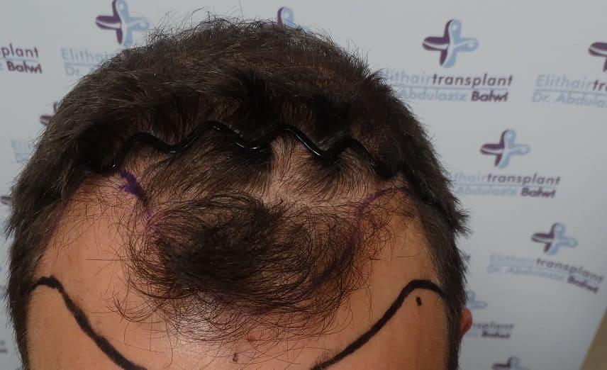Haarausfall durch Diabetes - Haartransplantation Elithairtransplant