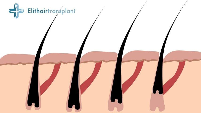 Haarausfall mit Wurzel - Info Grafik des Haarausfalls