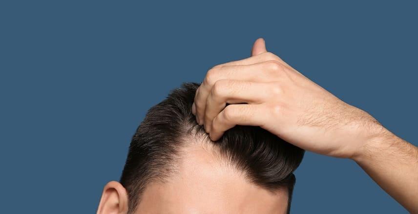 Haare brechen ab - Geheimratsecken