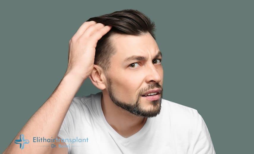 Haarausfall an den Schläfen beim Mann