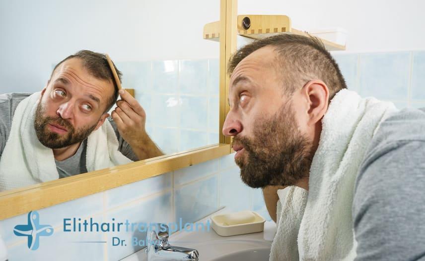 Junge Mann untersucht vor dem Badezimmerspiegel seinen fliehenden Haaransatz