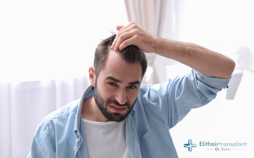 Fortschreitender Haarausfall bei Männer