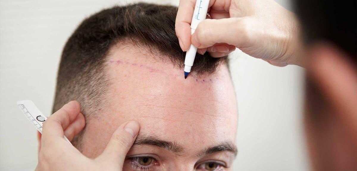 Haartransplantation bei Geheimratsecken Elithairtransplant