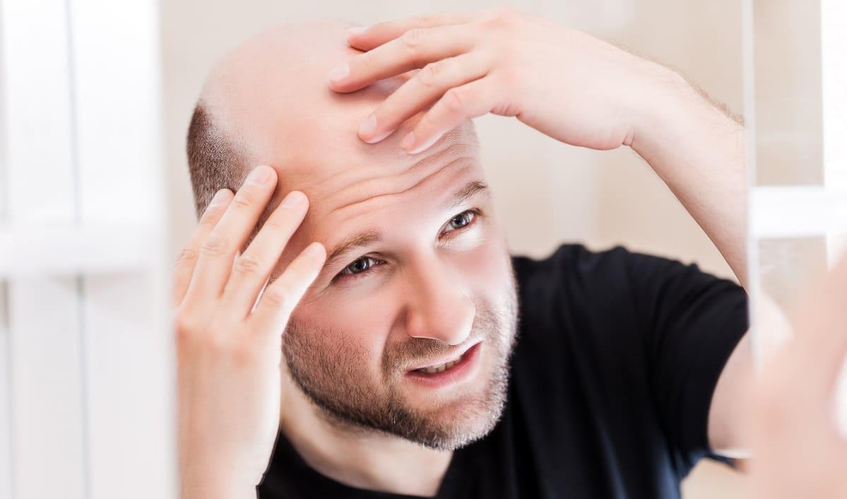 Haarwachstum anregen - Glatzer Mann