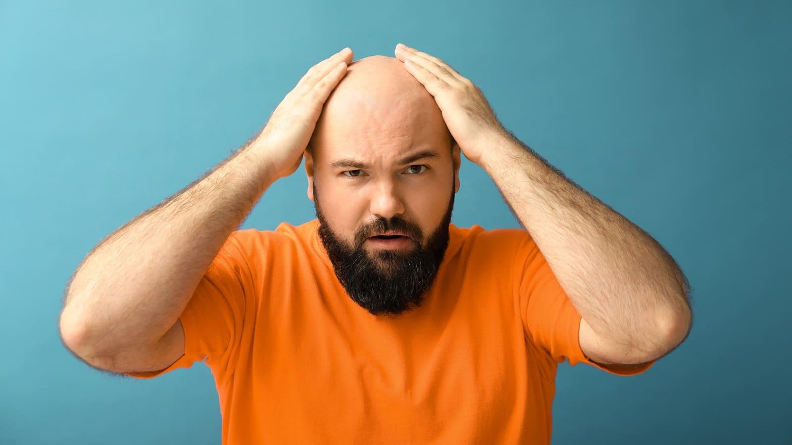 Von Alopecia universalis zur Perücke