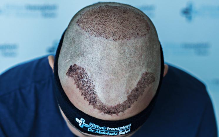 Nahaufnahme nach Haartransplantation Krusten entfernen - besser nicht gleich