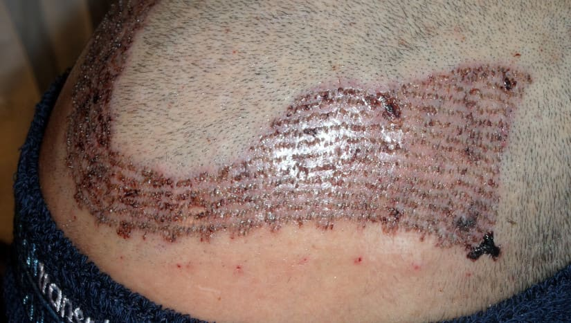 Nahaufnahme der Krustenbildung nach einer Haartransplantation.