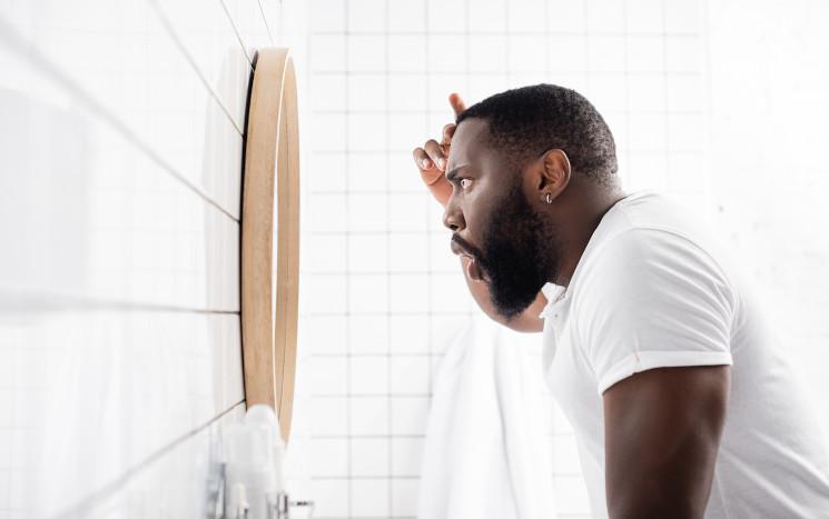 Mann checkt nach Haartransplantation Afro Haare