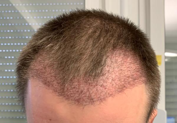 Nahaufnahme von Empfängerbereich wenige Wochen nach DHI Haartransplantation