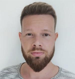 Mann mit perfektem Resultat nach Haartransplantation in der Türkei
