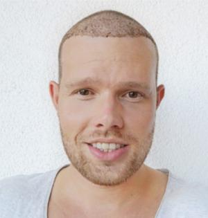 Mann kurz nach Haartransplantation in der Türkei