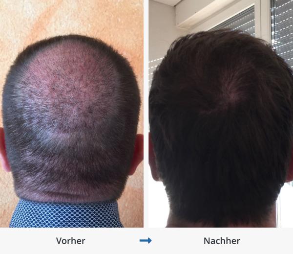 Ergebnis einer Haartransplantation im Tonsur Bereich