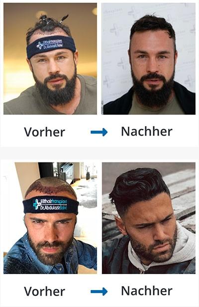 Vier Bilder von zwei Männern im Vergleich vor der Haartransplantation und danach