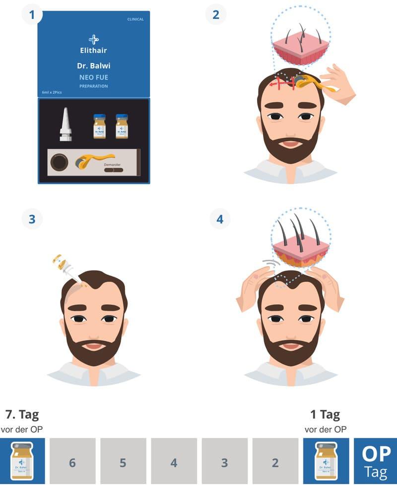 Ablauf und Anwendung der NEO FUE Haartransplantation