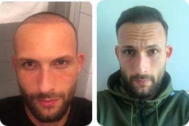 Vorher nachher Vergleich: dunkelhaariger Patient Geheimratsecken Haartransplantation mit 3.000 Grafts