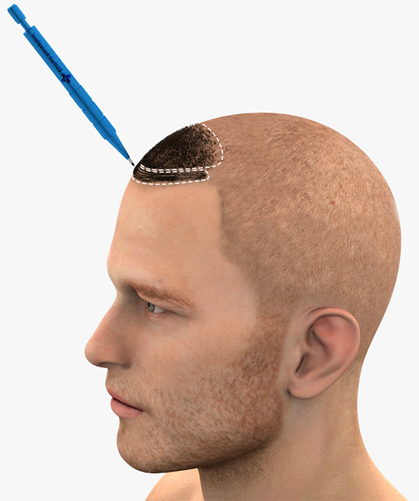 Kopf eines Mannes mit Darstellung der SDHI Methode
