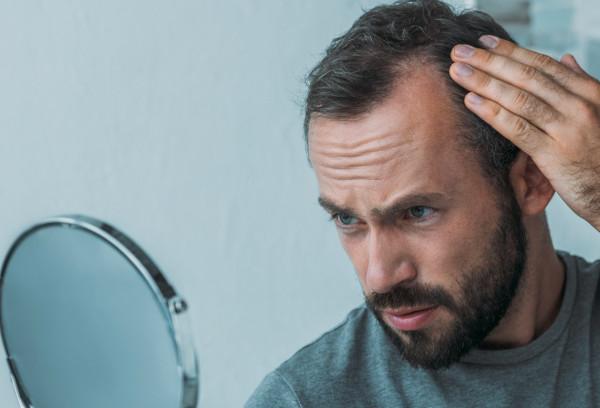 Mann leidet durch Haarausfall unter Geheimratsecken und kontrolliert diese im Spiegel