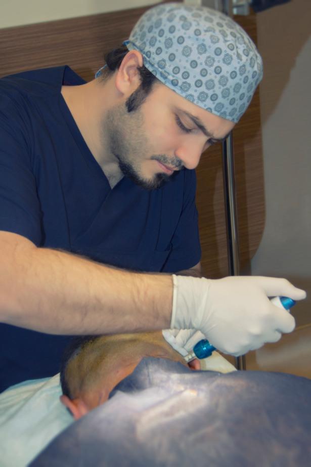 Dr Balwi pratiquant une anesthésie Comfort-In pour réduire la douleur pendant des implants capillaire