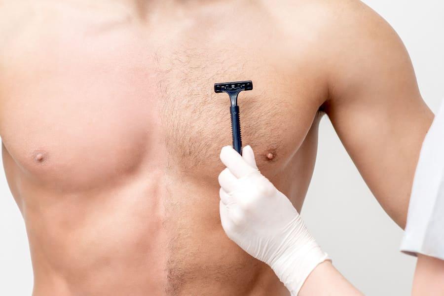 Oberkörper eines Mannes wird für die Entnahme der Bodygrafts vorbereitet.