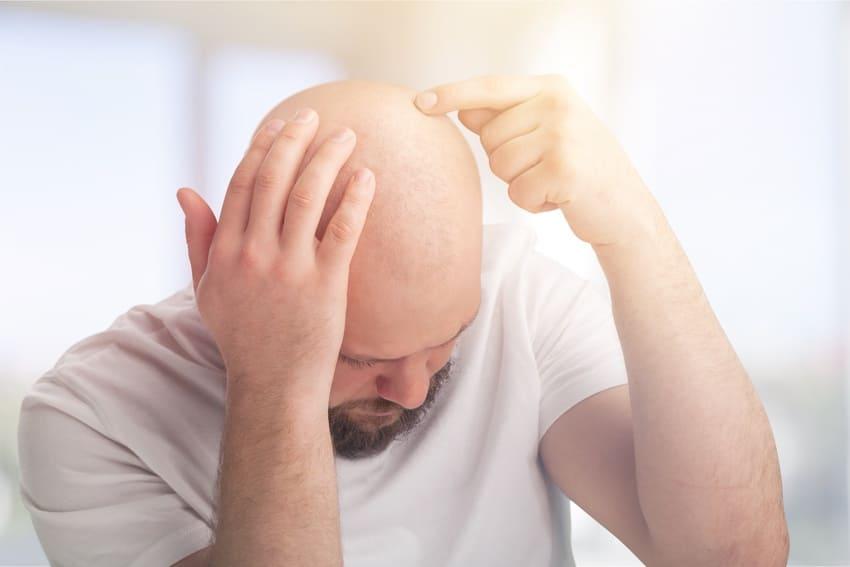 Mann mit Alopecia Totalis zeigt psychische Belastung