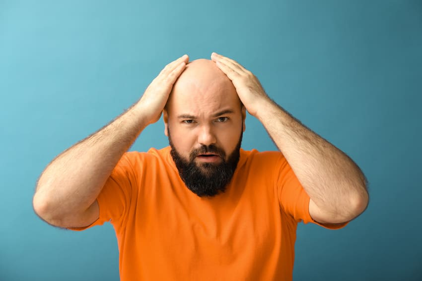 Mann mit komplettem Haarausfall bei Alopecia Totalis