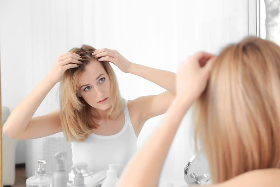 Frau leider unter erblich bedingter Haarausfall