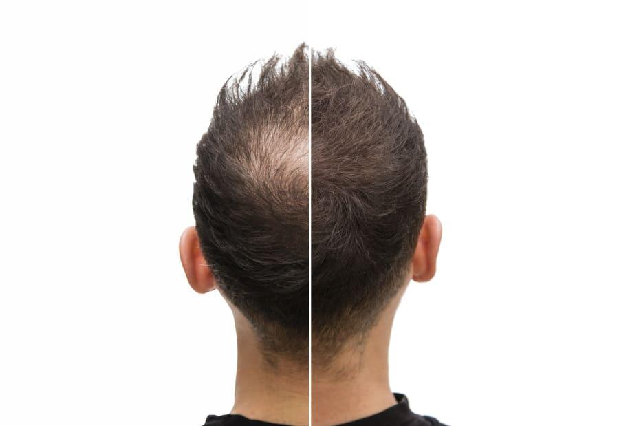 Vorher Nachher Vergleich einer Haartransplantation bei einem Mann mit erblich bedingter Haarausfall