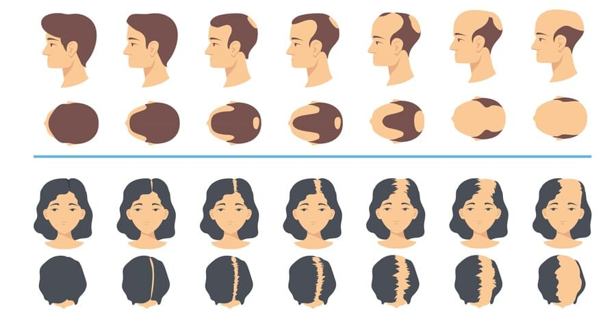 Grafik über den Verlauf von erblich bedingter Haarausfall bei Mann und Frau